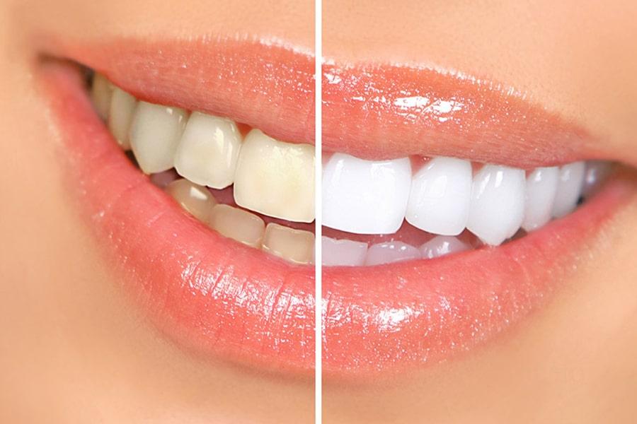 Diş Beyazlatma, Estetik Diş Uygulamaları, Lamina, Kompozit