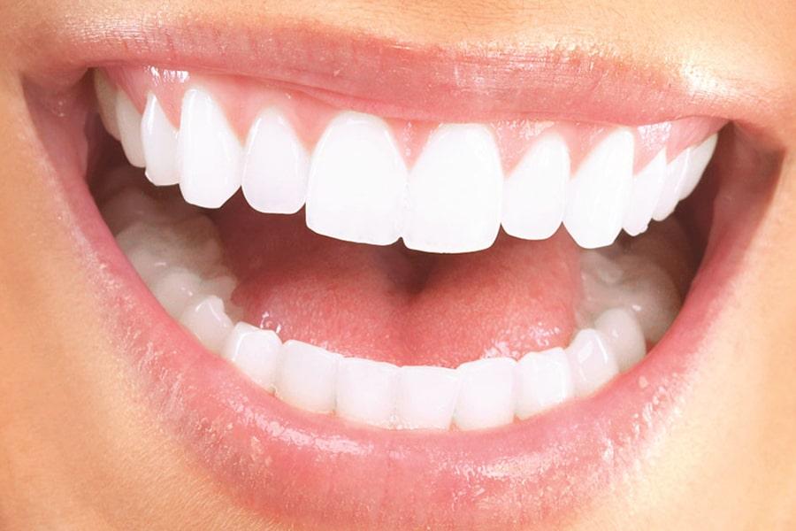 lamina diş, estetik diş, estetik dolgu, diş beyazlatma
