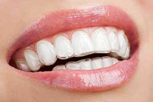 seffaf plak ile telsiz ortodonti